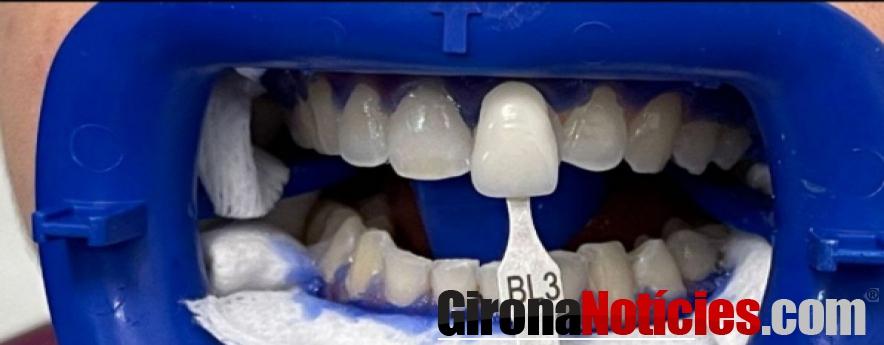 alt - La sociedad se prepara para quitarse la mascarilla: aumentan el número de blanqueamientos y carillas dentales